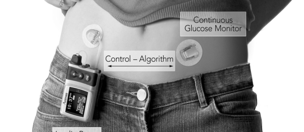 insulin pump main